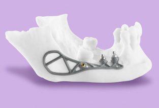 implant podokostnowy